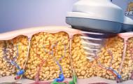 医学动画演示减肥仪器机理